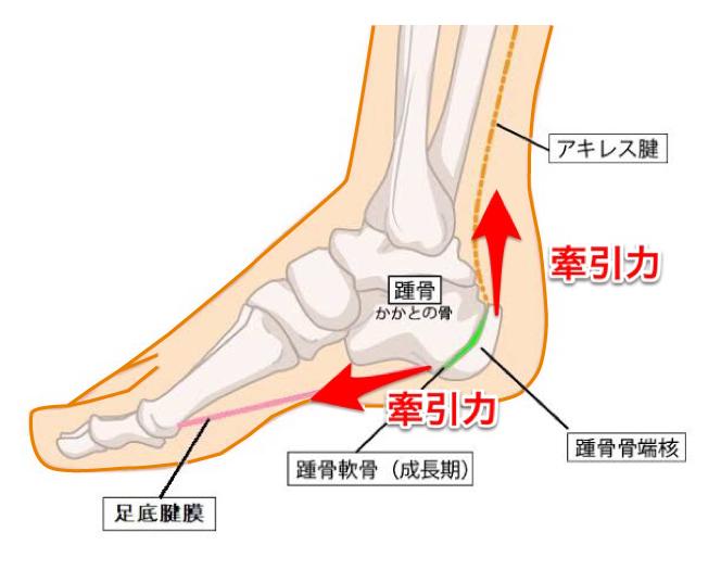 滋賀県東近江市八日市の整骨院・鍼灸院 てらい整骨院シーバー病 症例 足のかかとに痛みや腫れ