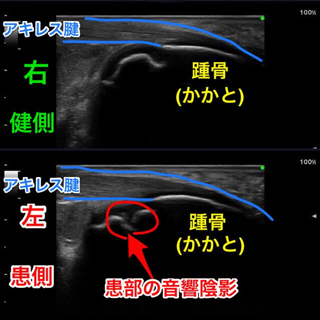 滋賀県東近江市八日市の整骨院・鍼灸院 てらい整骨院シーバー病 症例